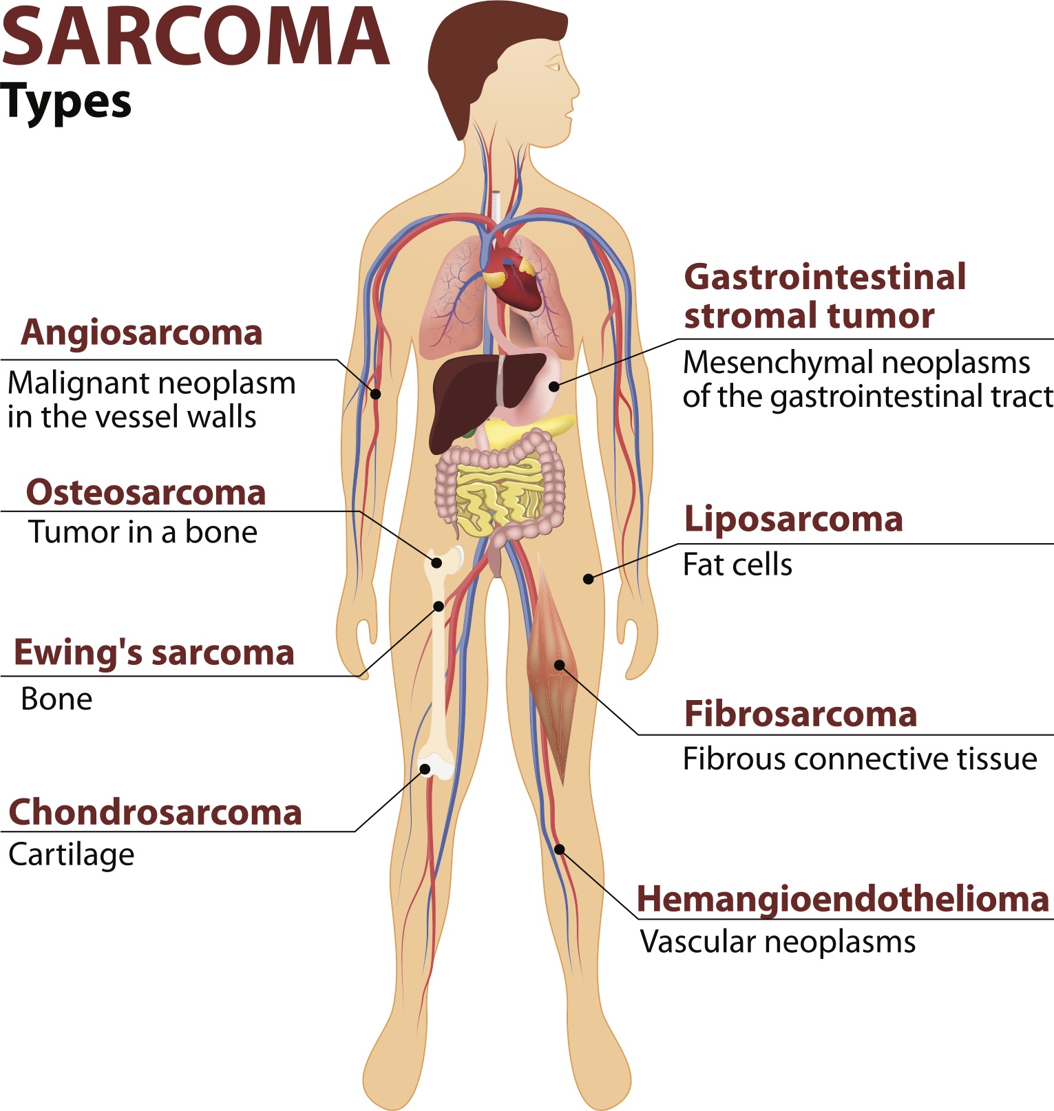 image of a body outlining different parts of the body where sarcoma attacks