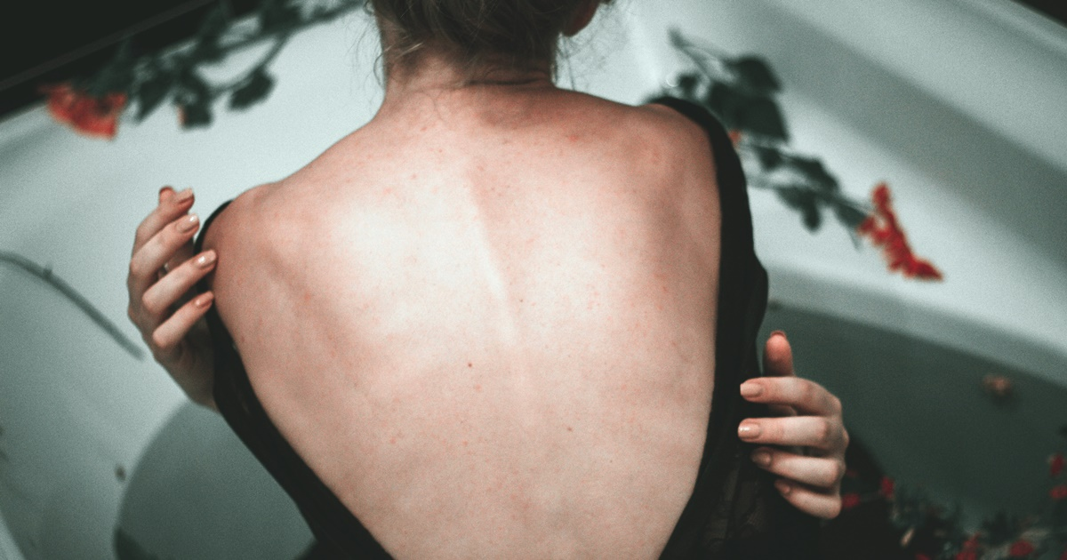 How Chronic is Chronic Pain?, image of a white woman facing away from the camera and wearing a black backless bodysuit, health